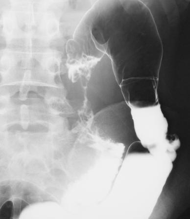小腸造影検査