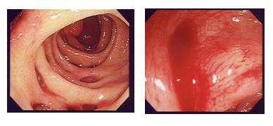 大腸憩室症
