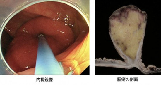 腸管脂肪腫
