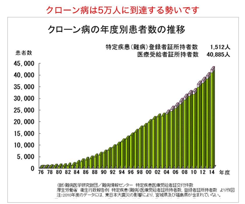 クローン病は5万人に到達する勢いです