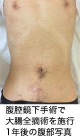 1年後の腹部写真